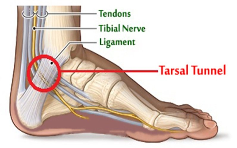 tarsal-tunnel